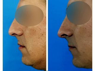 Rinoplastía + Implante de mentón