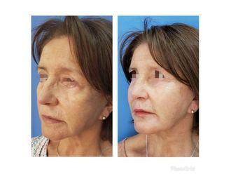 Rejuvenecimiento facial - 636585