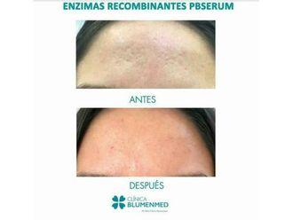 Rejuvenecimiento facial - 640195