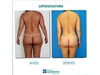 Lipoescultura-640202