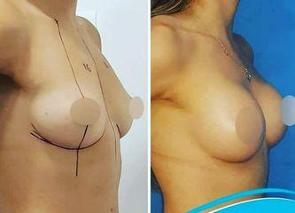 Aumento mamario - Clínica Doctor Flores Aqueveque
