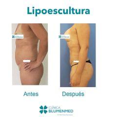 Lipoescultura - Clínica Doctor Flores Aqueveque