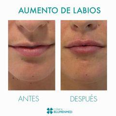 Aumento de labios - Clínica Doctor Flores Aqueveque