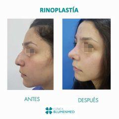 Rinoplastia - Clínica Doctor Flores Aqueveque