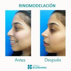 Rinomodelación - Clínica Doctor Flores Aqueveque