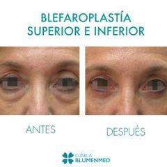 Blefaroplastia - Clínica Doctor Flores Aqueveque