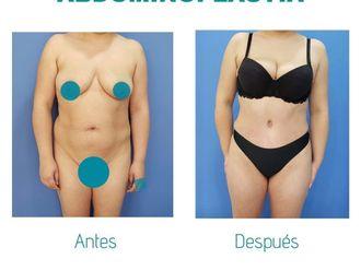 Abdominoplastia-738476
