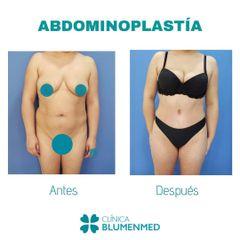 Abdominoplastia - Clínica Doctor Flores Aqueveque