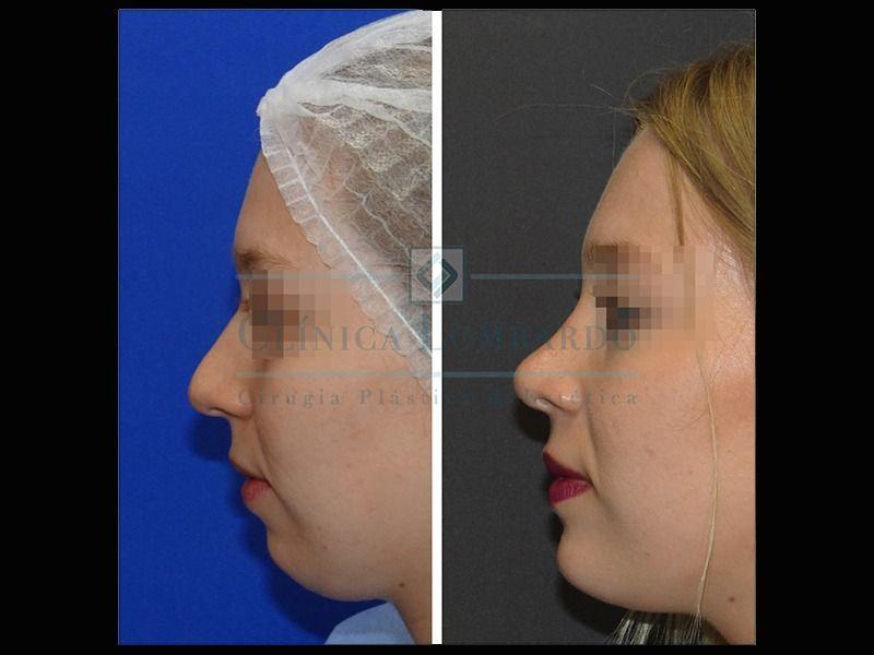 Dr. Lombardo - Cirujano Plástico Acreditado