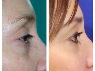 Antes y Después Blefaroplastia Inferior Dr. Renán Pereira Cirujano Plástico y Estético