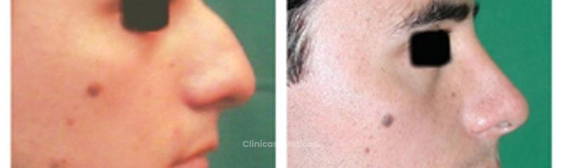 Rinoplastia y/o Septoplastia