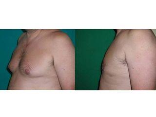 ginecomastía antes y después