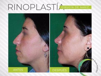 Rinoplastia - 628137