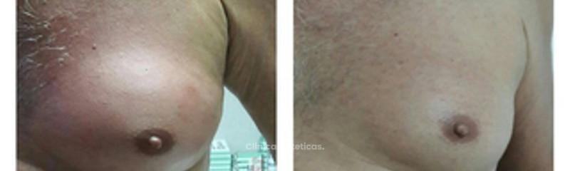 Tratamiento de reducción de tejido graso en pectorales en hombres.