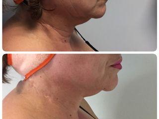 Tratamiento exilis para tensado de piel, disminuyendo flacidez facial y en cuello