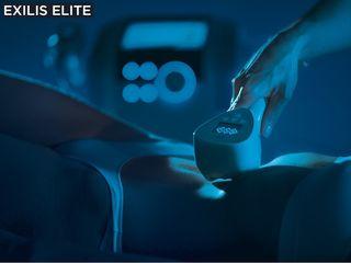 Tratamiento adiposidad localizada , Exilis Elite única tecnología Patentada aprobada por FDA.