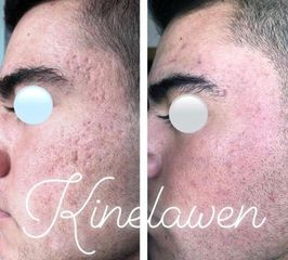 tratamiento infini para cicatrices de acné