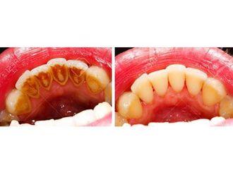 Limpieza dental - 545217