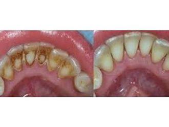 Limpieza dental - 545218