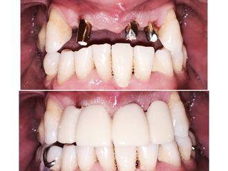 Implantes dentales - 580833