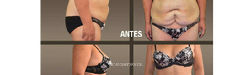 fotos_antes_despues_abdminoplastia_ 04