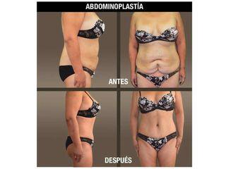 fotos_antes_despues_abdminoplastia_ 04