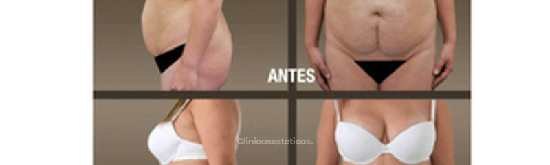 fotos_antes_despues_abdminoplastia_ 08