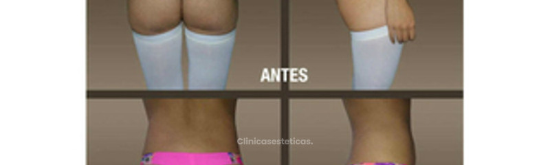 fotos_antes_despues_gluteos_01
