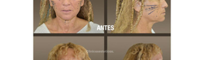 fotos_antes_despues_lifting_facial_01