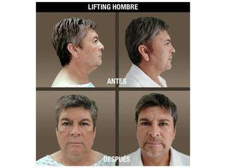 fotos_antes_despues_lifting_hombre_01