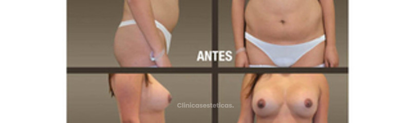 fotos_antes_despues_lipoescultura_02