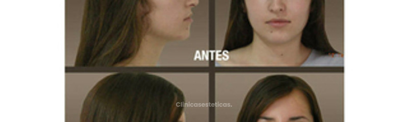 fotos_antes_despues_rinioplastia_02