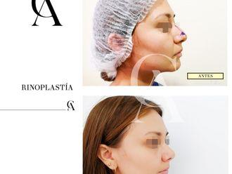 Rinoplastia-648869