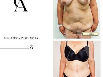 Abdominoplastia-648941