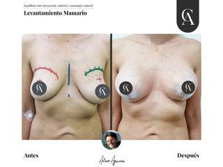 Aumento mamario - Dr. Arturo F Aguirre A