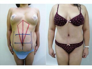 Abdominoplastia - Dr. Arturo F Aguirre A