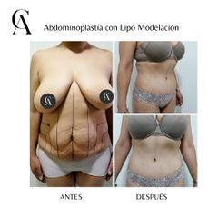 Abdominoplastía con Lipomodelación - Dr. Arturo F Aguirre A