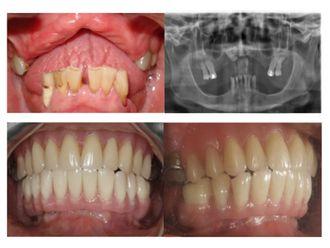 Prótesis dentales - 501738