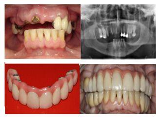 Prótesis dentales-501739