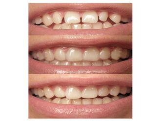 Ortodoncia invisible-501740