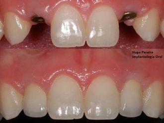 Implantes dentales - 573075