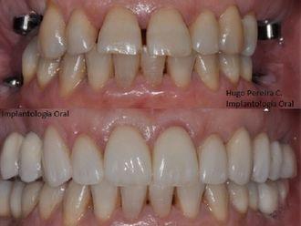Implantes dentales - 573077