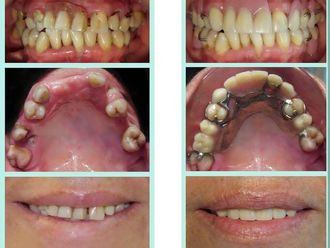 Prótesis dentales - 612439