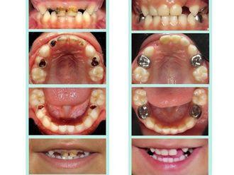 Endodoncia - 621549