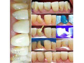 Estética dental-621550