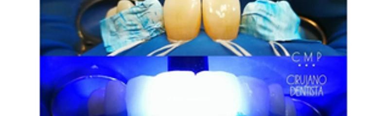 Carillas de composite directa sin desgaste dentario previo