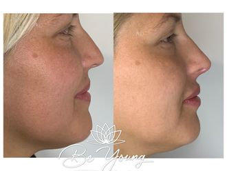 Aumento de labios-741550