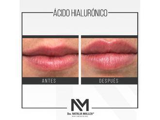 Aumento de labios - 642718