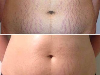 Carboxiterapia - 590707