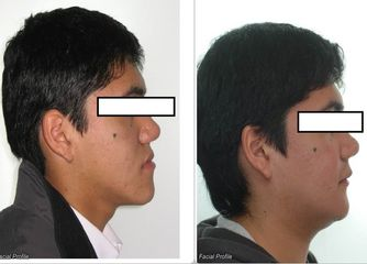 Ortodoncia y Cirugia Ortognatica